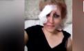 Policías Federales intentan violar a mujer