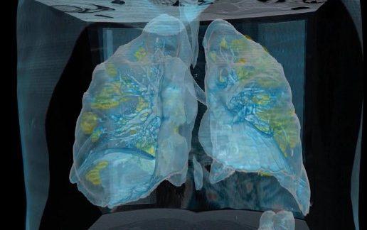 Video de como ataca el Covid-19 a los pulmones ¡increíble!